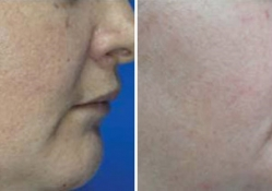 pigmented_lesion_before_after_picture_1