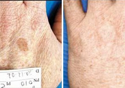 pigmented_lesion_before_after_picture_2