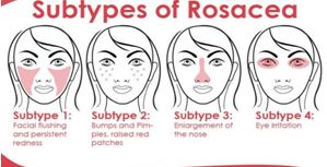 what is rosacea